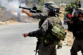 العيسوية..حين يشوه رصاص الاحتلال وجوه المقدسيين