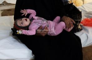 حال أطفال اليمن