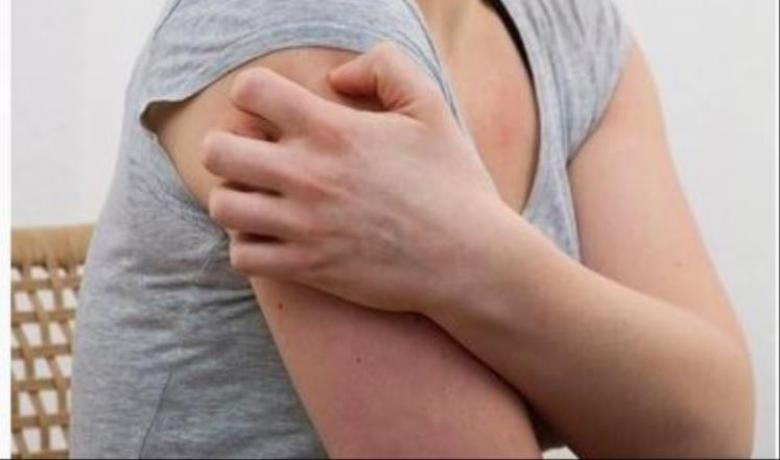 """""""جلد الدجاجة"""".. مرض وراثي يمكن التعامل معه"""