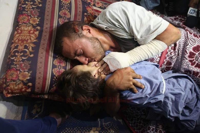قبلة وداع المصاب والد الشهيدة الطفلة رهف حسان