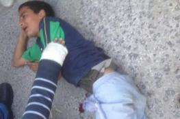 إصابة طفلين في انفجار جسم مشبوه بطولكرم