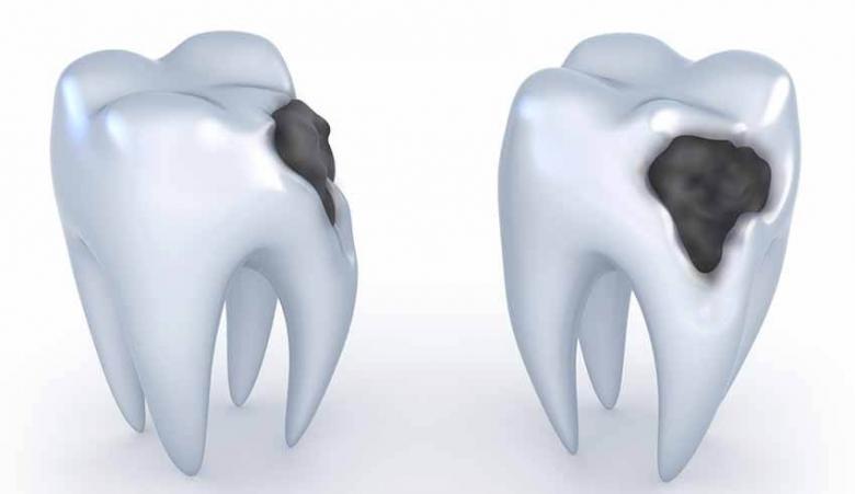 طرق علاج التهاب الأسنان
