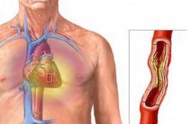 شراب طبيعي لتنظيف الأوعية الدموية والشرايين