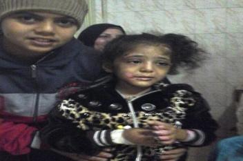 مصري يعذب طفلته حرقاً والسبب صادم