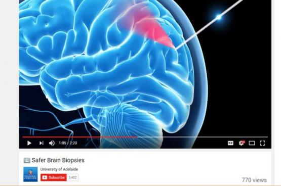 إبرة ذكية تجعل جراحات المخ أكثر أمانا