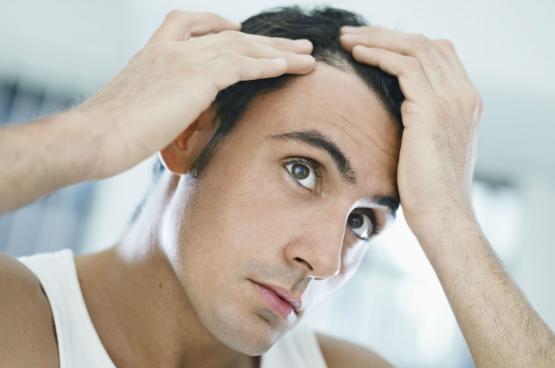 """3 أسباب """"نفسية"""" وراء تساقط الشعر"""