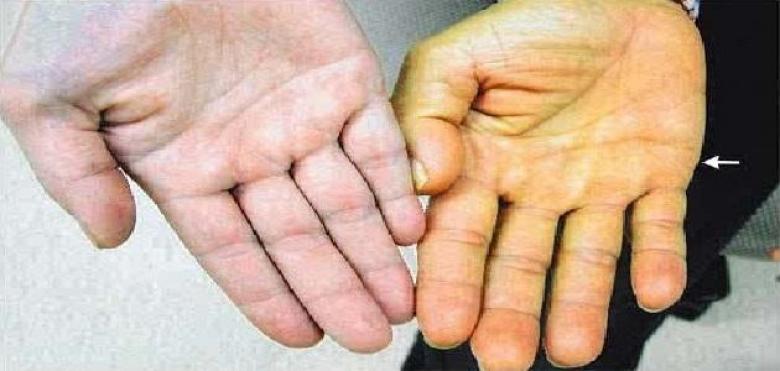 اصفرار الجلد يشير لأمراض خطيرة