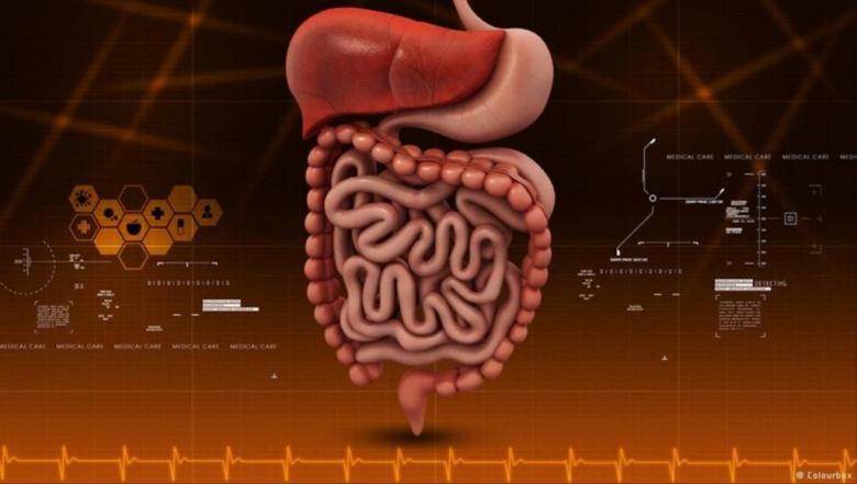 ما هو العلاج الجديد لمرض التهاب القولون التقرحي؟
