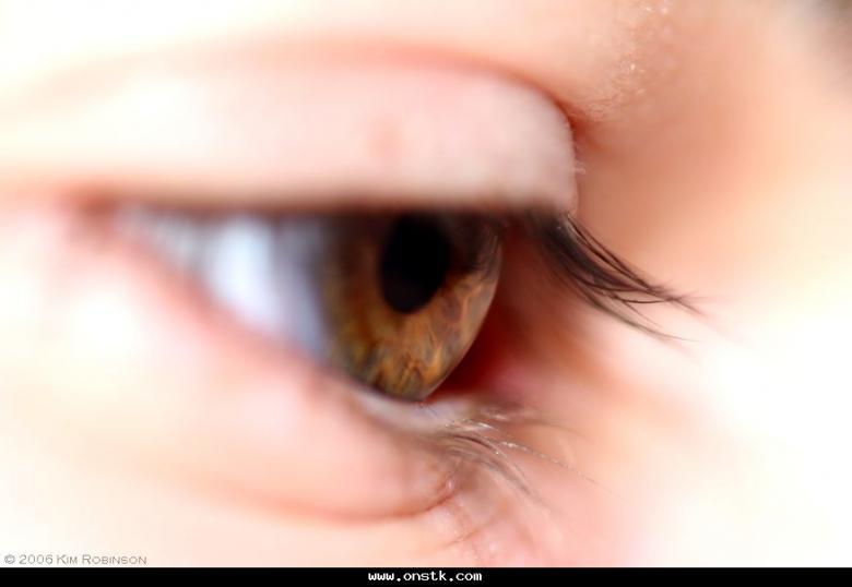لكِ.. 8 خطوات سهلة لتجنب انتفاخ العينين