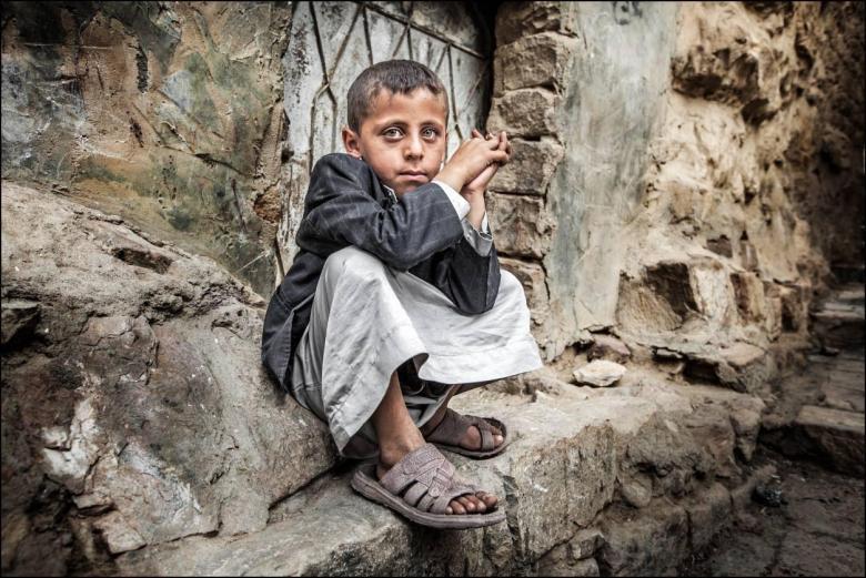 1400 طفل قتلوا في النزاع اليمني منذ بدايته