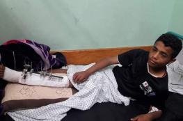 لاعب خدمات البريج يتعرض لإصابة خطيرة