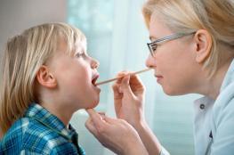 اللوز عند الأطفال.. الأعراض والعلاج