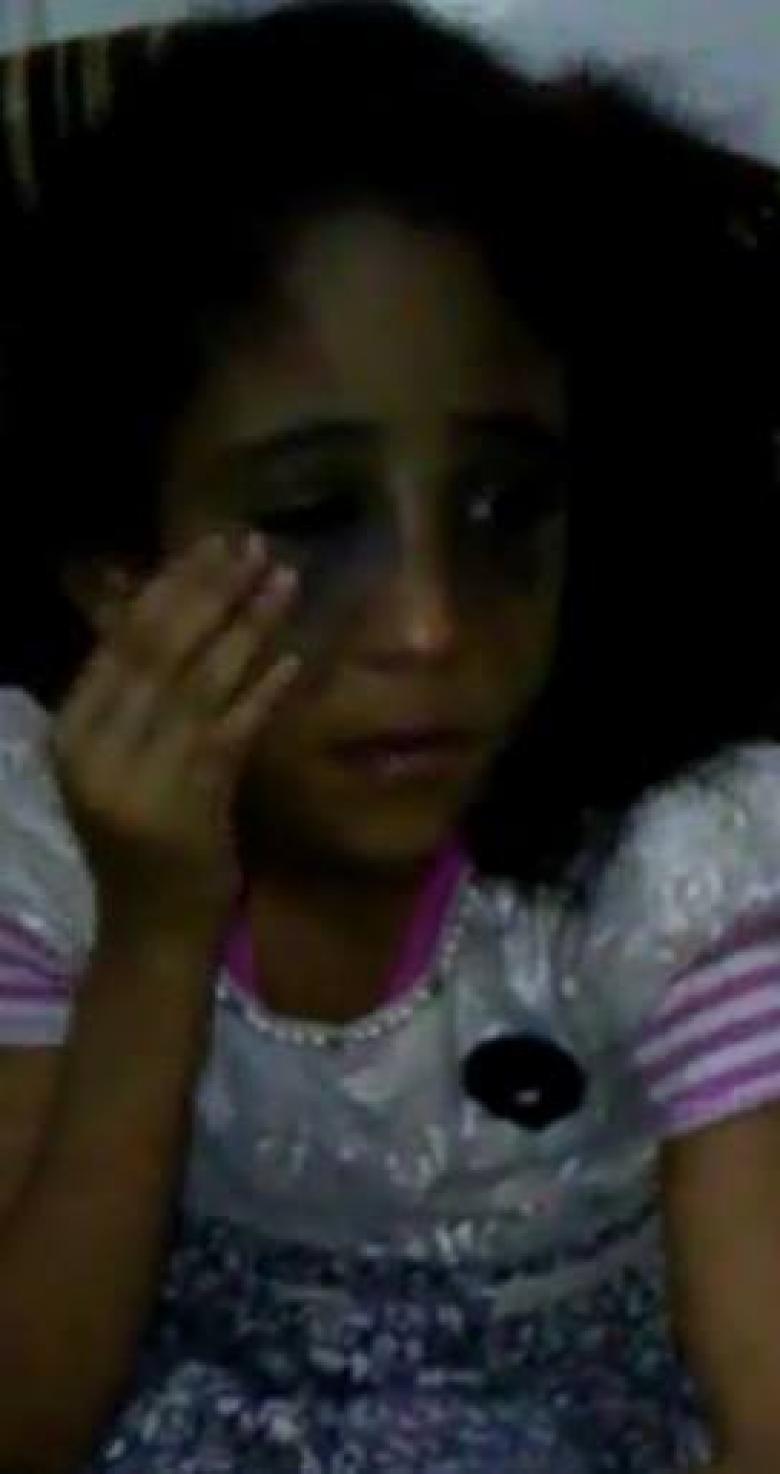 """حادثة تعذيب الطفلة """"مآب"""" وقتلها على يد والدها في اليمن"""
