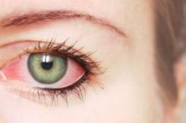 8 أعراض لالتهاب ملتحمة العين