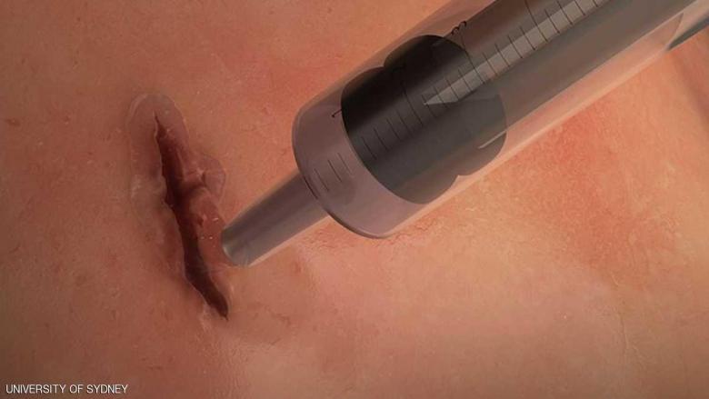 غراء طبي يغلق الجروح خلال 60 ثانية