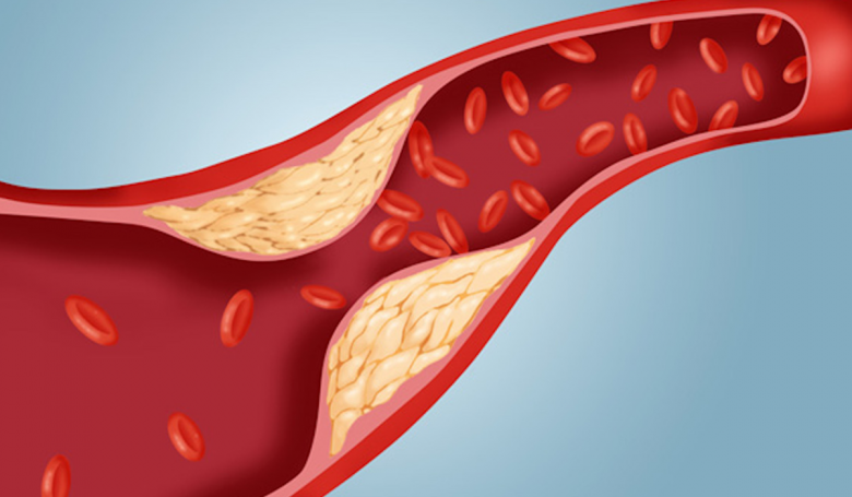 الكوليسترول النافع ليس نافعاً