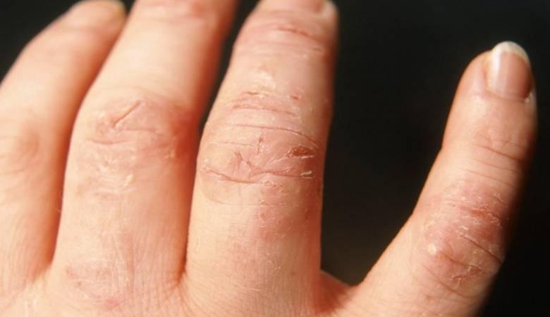 الإكزيما تسبب جفاف الجلد