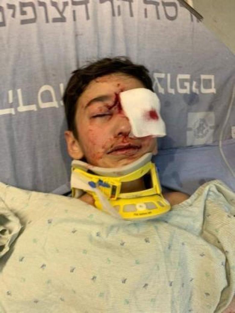 طفل مقدسي مهدد بفقدان عينه إثر إصابته برصاص الاحتلال