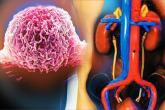 اعتماد أميركي لعقار جديد لسرطان المثانة