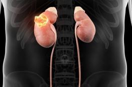 خبراء يربطون بين الوزن الزائد والإصابة بسرطان الكلى