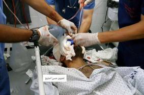 شهيد و3 إصابات بقصف استهدف مجموعة مواطنين شرق رفح