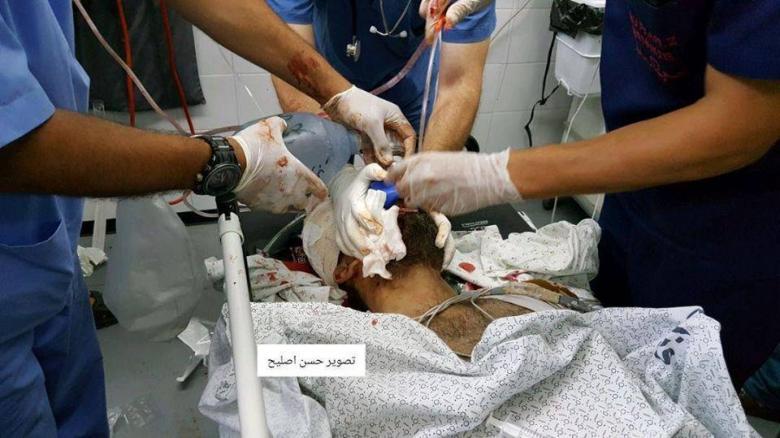 شهيد و3 إصابات بقصف لمجموعة مواطنين شرق رفح