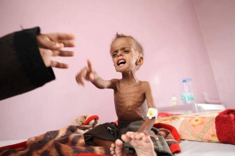 غزة تنظم حملة تضامنية مع أطفال اليمن