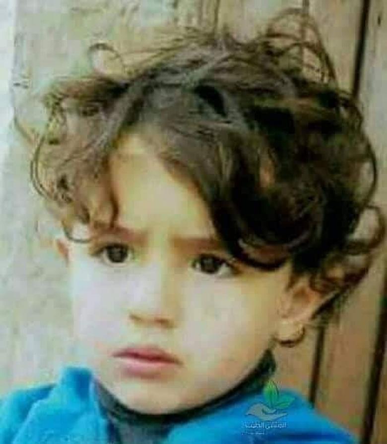 وفاة طفل إثر هجمة كلب قبل 10 أيام في مخيم شعفاط