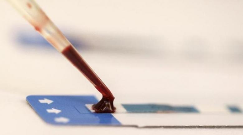 اختبار دم قد يشخّص أكثر أسباب العمى شيوعاً قبل ظهور الأعراض