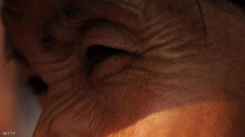 """التدخين و""""شكل الوجه"""".. العلم يكشف التأثير المدمر"""