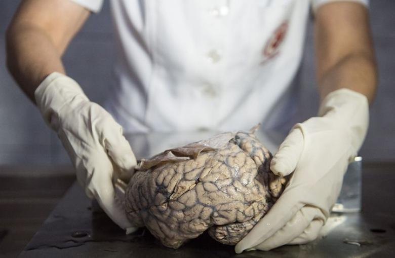 علماء يستطيعون زراعة دماغ بشري مخبريا