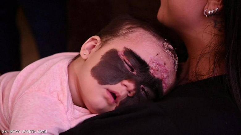 """""""رضيعة باتمان"""" التي أثارت تعاطف العالم تبدأ رحلة العلاج"""