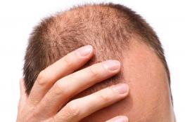 الحل الأمثل لعلاج تساقط الشعر