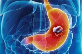 عقار يساعد بالوقاية من سرطان المعدة