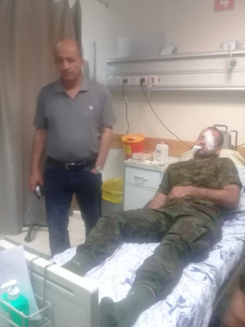 إصابة 4 ضباط فلسطينيين شرق نابلس