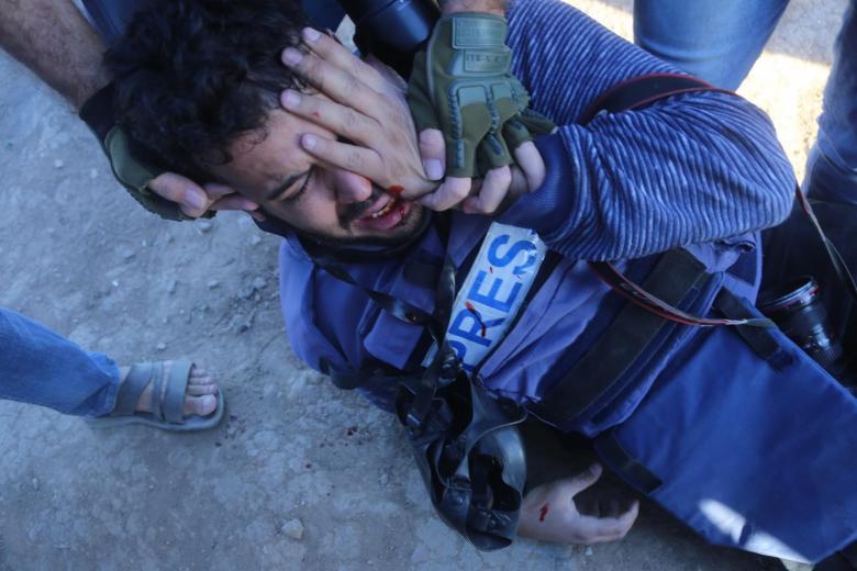 منظمة: 19 متظاهرا بغزة فقدوا أعينهم برصاص الاحتلال