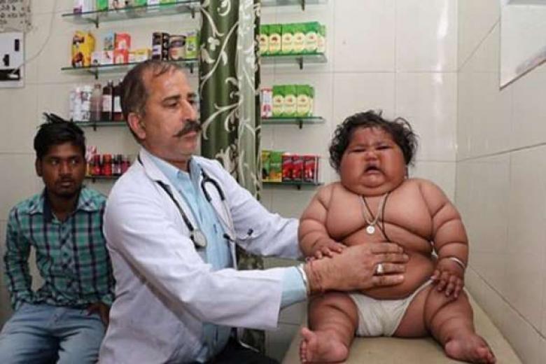 """أسمن """"رضيعة"""" في العالم.. تزن 17 كجم وعمرها 8 أشهر"""