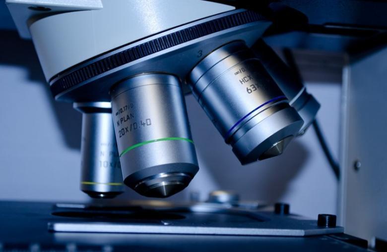 علماء يكتشفون طريقة لمنع الإصابة بمتلازمة داون