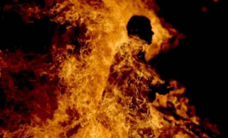 وفاة عامل أحرق نفسه في إربد