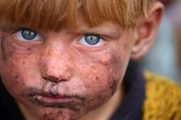 "صبي عراقي يروي قصته مع ""وحوش"" داعش"