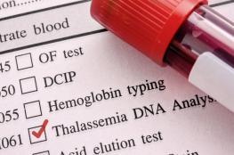 الثلاسيميا: كلّ ما تودين معرفته عن المرض