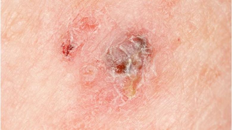 """اختبار عبر الإنترنت """"يتوقع الإصابة"""" بنوع قاتل من سرطان الجلد"""