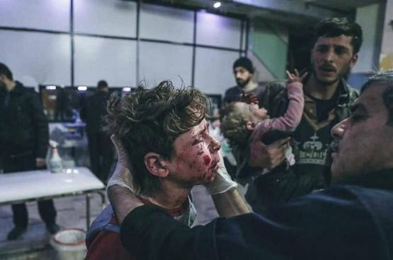 """مسؤول أممي: الغوطة الشرقية تشهد """"قتلا منهجيا للمدنيين"""""""