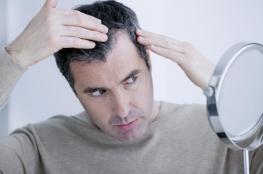 4 طرق فقط قادرة على علاج تساقط الشعر والصلع
