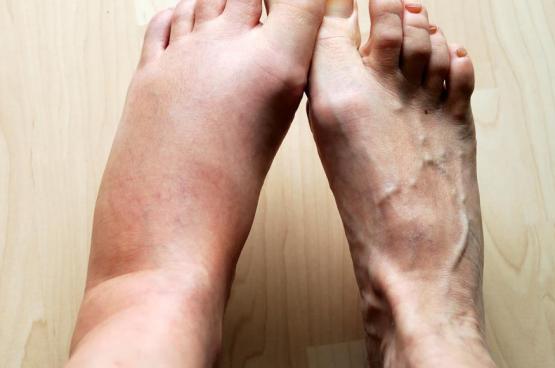 7 أسباب لتورم القدمين