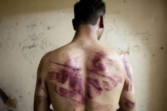 """تقرير أممي يتهم الحكومة السورية بـ""""إبادة معتقلين"""""""