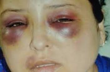 """سيدة تتعرض للعنف الشديد من 3 أشقاء بسبب """"علبة سجائر"""""""