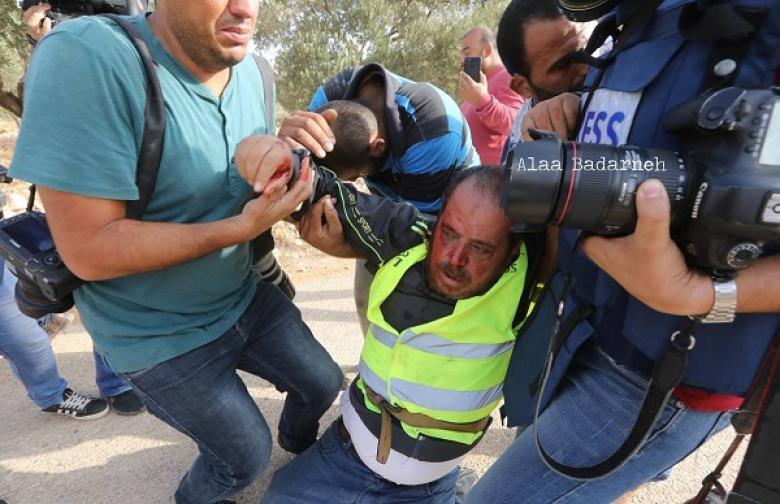 تقرير: 41 اعتداءً ضد الحريات الإعلامية بفلسطين خلال أكتوبر