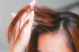 مجموعة من الفوائد المدهشة لزيت الشعر