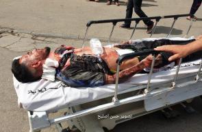 مناورة في مستشفى غزة الأوروبي